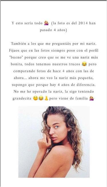 Story Laura Escanes